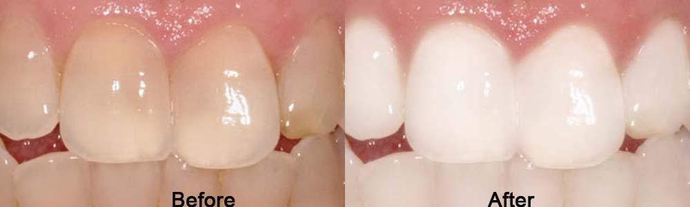 Cara Memutihkan gigi dengan Odol